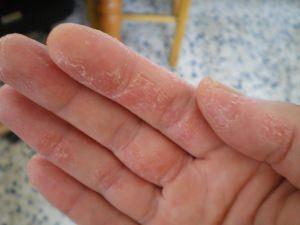 Шелушение на пальцах рук