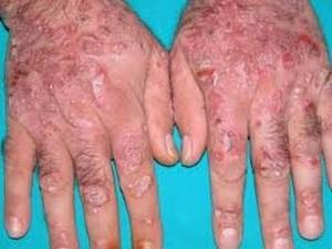 Псориаз на пальцах рук