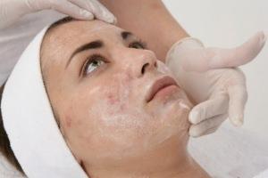 Лечение кожи лица от псориаза