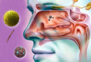 Воздействие аллергических факторов