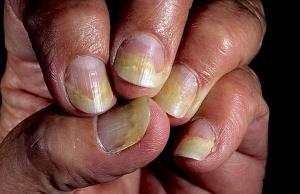 Проявление псориаза ногтей
