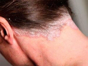 Проявления псориаза на голове