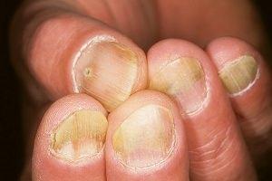 Как выглядит псориаз ногтей