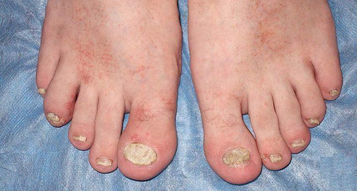 Фото псориаза ногтей на ногах