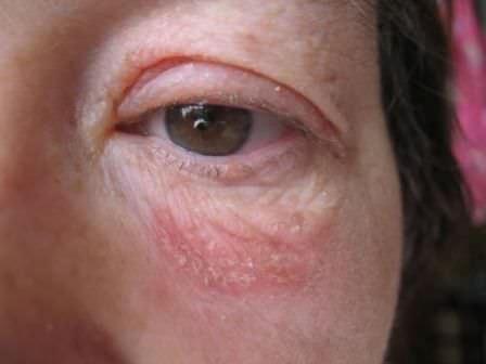 Псориаз на глазах и веках: фото и способы лечения