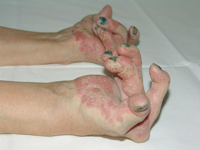 Псориаз суставов: симптомы, лечение, последствия
