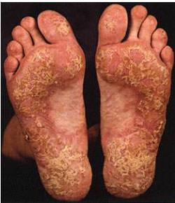 Симптомы псориаза на ступнях
