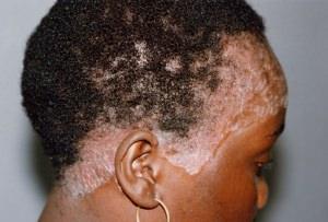 Фуфан для волосистой части головы