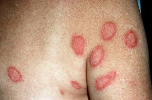 Симптомы парапсориаза