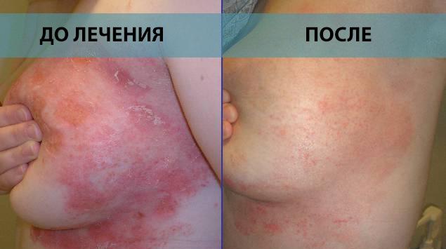 Грудь до и после лечения