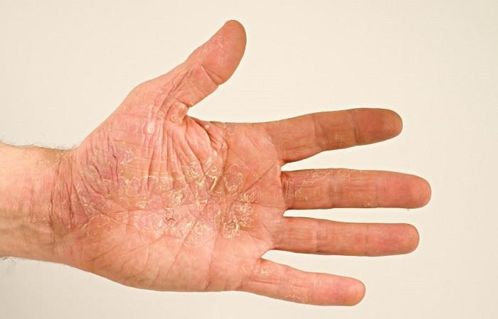 Чем отличается псориаз от нейродермита?