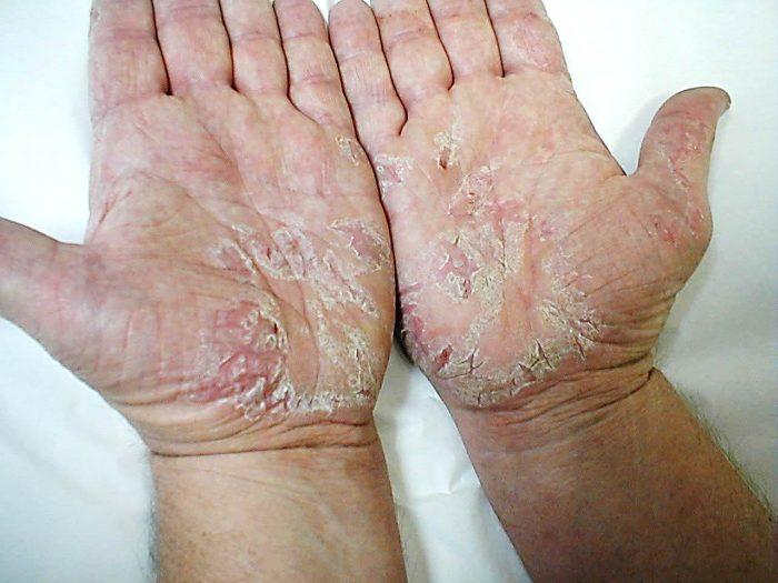 Симптомы псориаза на руках