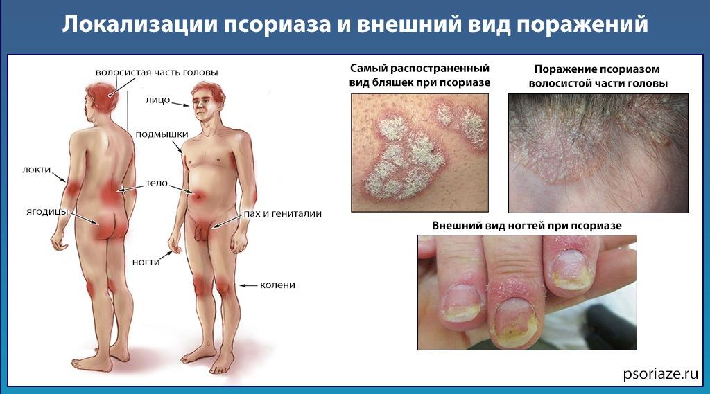 Основные локализации псориаза