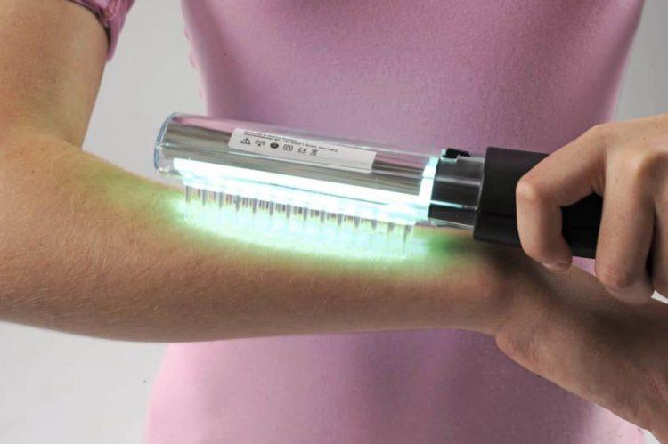 Ультрафиолетовая расческа от псориаза