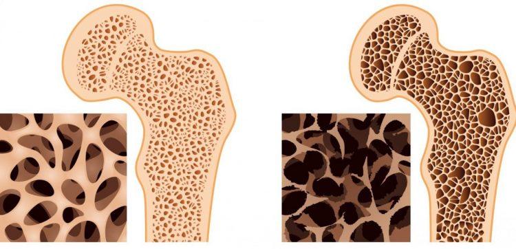 Снижение плотности костей
